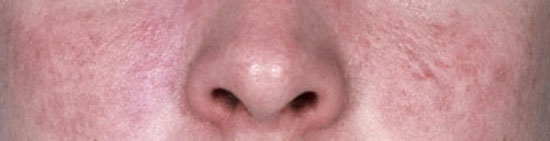 curar acne rosacea