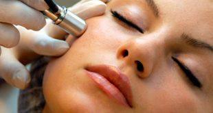 dermoabrasion-remover-cicatrices-acne